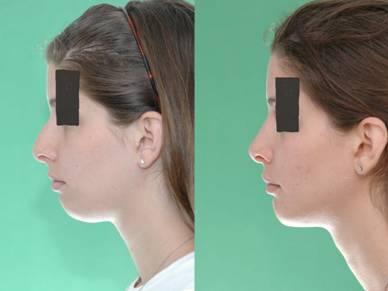 Rhinoplasty with Chin Implant by Dr. Mushtaq