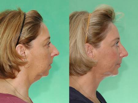 Rhinoplasty with Chin Implant and Head and Neck Liposuction by Dr. Mushtaq